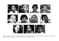 Multiple congenital anomalies/mental retardation syndrome caused by defect in cholesterol synthesis